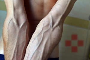 a man with very vascular forearms