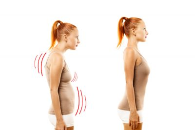young woman with bad posture